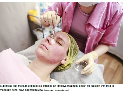 Chemical Peels Effective for Mild to Moderate Acne