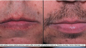 Peeling The Way To Augmented Lips