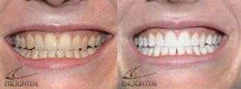 Teeth-whitening-3.jpg