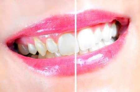 Teeth_whitening_1.jpg