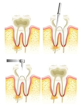 Root_canal_treatments_1.jpg