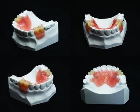 Dentures_2.jpg