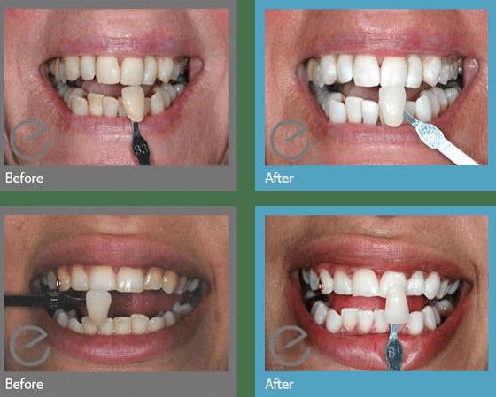 Teeth-whitening-6.png