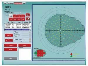 Компьютерный периметр PTS-1000 Optopol Польша