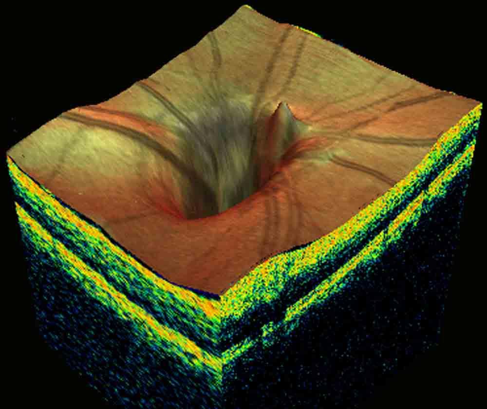 3d-glaucoma-disk.jpg