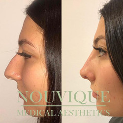 Non surgical Rhinoplasty 😍😍😍_What an