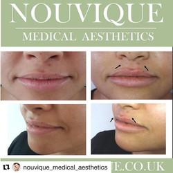 #Repost _nouvique_medical_aesthetics wit