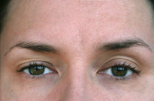 Ptosis, eyelid syndrome.jpg