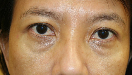 10.filler pre injeciton. cropped .jpg