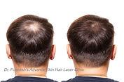 hair%20loss.%20Care%20Concept.%20transpl