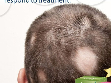 corticosteroids are useful in treating scarring alopecia in immune deficient patient? what is the tr