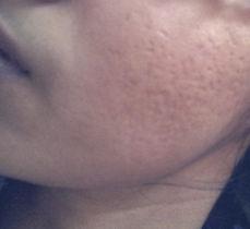 acne%20scar_edited.jpg