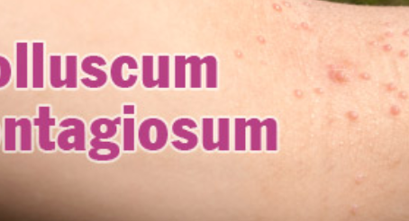 Symptoms, Causes & Diagnosis of Molluscum Contagiosum.