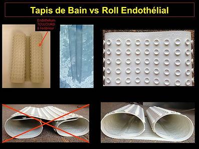 Greffe de cornée paris : Tapis de bain versus roll endothélial