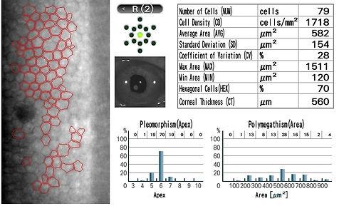 Microscopie spéculaire un an post DMEK sur implant de chambre antérieure