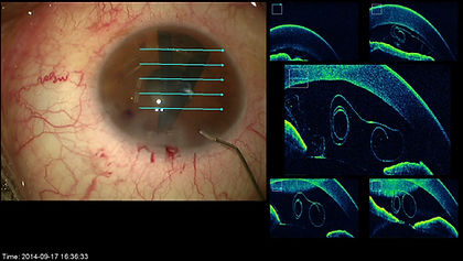 Greffe de cornée paris : OCT intra-opératoire (iOCT) d'un greffon de DMEK à l'envers en chambre antérieur