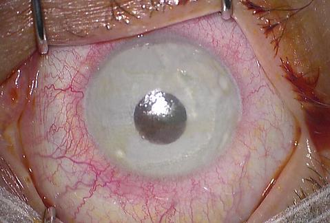 """Implant irien coloré """"New color iris"""""""