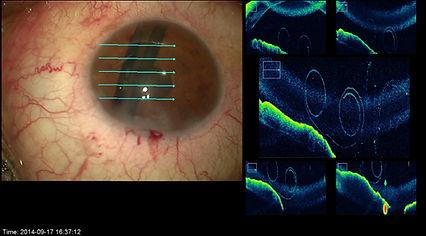 greffe de cornée paris : OCT intra opératoire (iOCT) d'un greffon de DMEK dans le bon sens en chambre antérieure