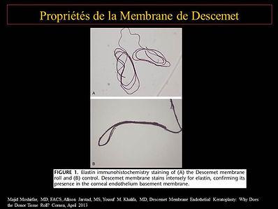 Greffe de cornée paris : propriété membrane de Descemet
