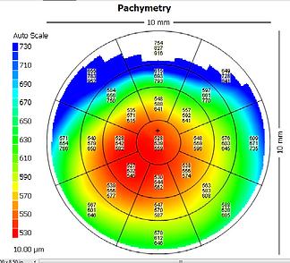Carte pachymetrique post-DMEK sur implant de chambre antérieure