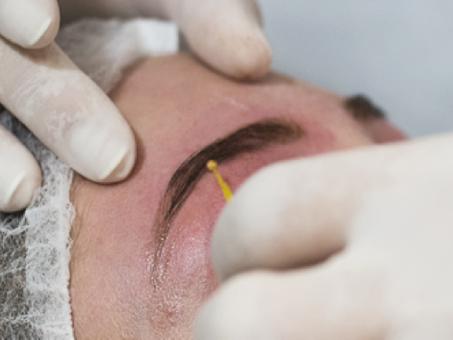 Pomada Anestésica para Micropigmentação de Sobrancelhas Prejudica o Resultado? DESCUBRA!
