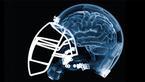 New Research: Practice Concussions Decline
