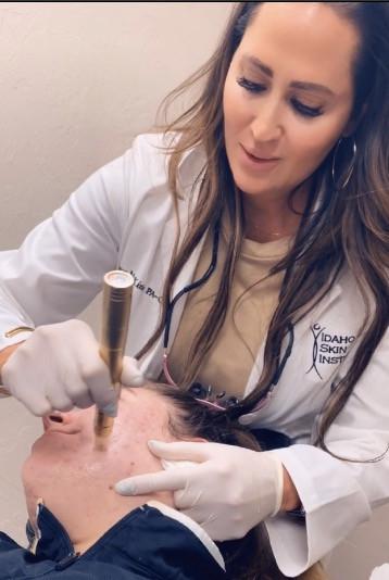 Dermatologist PA Derm Diva Amy McKinlay performs microneedling procedure