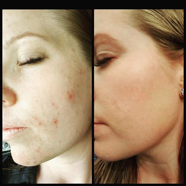 before-and-after photo of patient after microneedling treatment