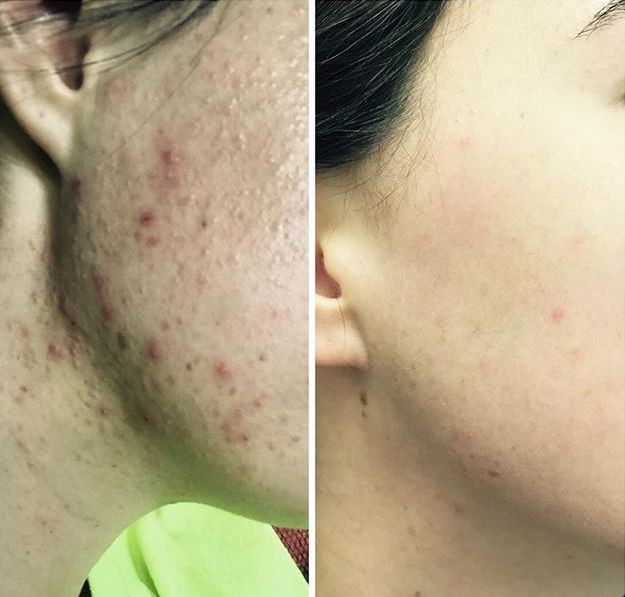 before-and-after photo of client's face after several microneedling procedures