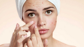 Stress and Acne – Chill Out, Avoid the Breakout