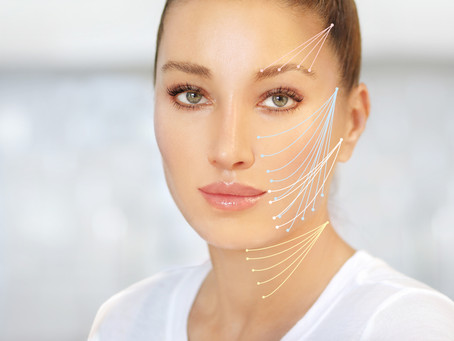 """IS A """"THREAD LIFT"""" RIGHT FOR YOU?"""