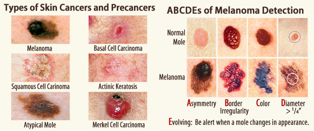 pictures of different types of moles and melanoma skin cancer