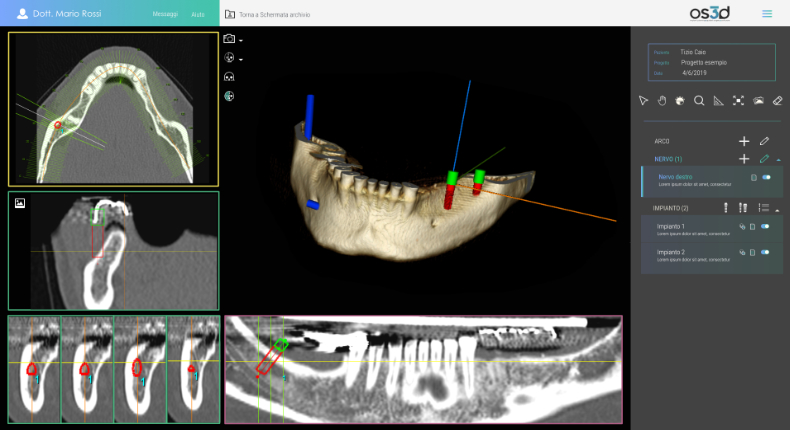 NRGsys_OS3D_dental implant planning3