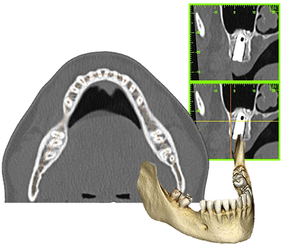 OS3D_different type of radiological image