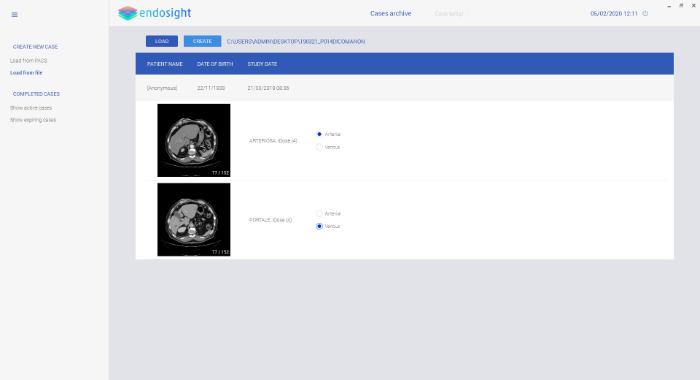 NRGsys_Endosight_setup