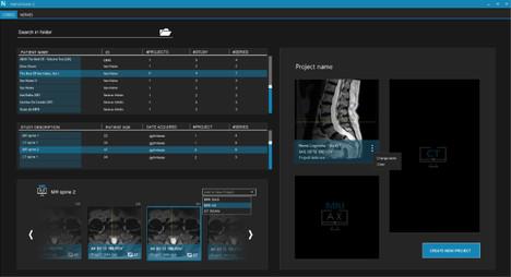 NRGsys_spinal nerve surgery software