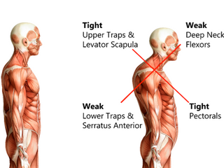 Walking Tall: Correcting Upper Cross Syndrome