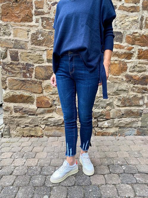 Skinny Jeans Zipper Blue