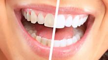 Clareamento dental: o que você precisa saber!