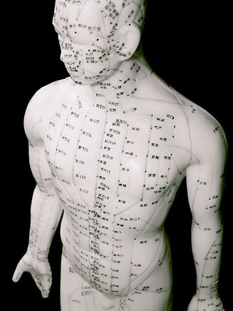 acupuncture-therapy1.jpg