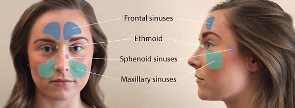 UC201707721 EN What is Sinusitis (1).jpg