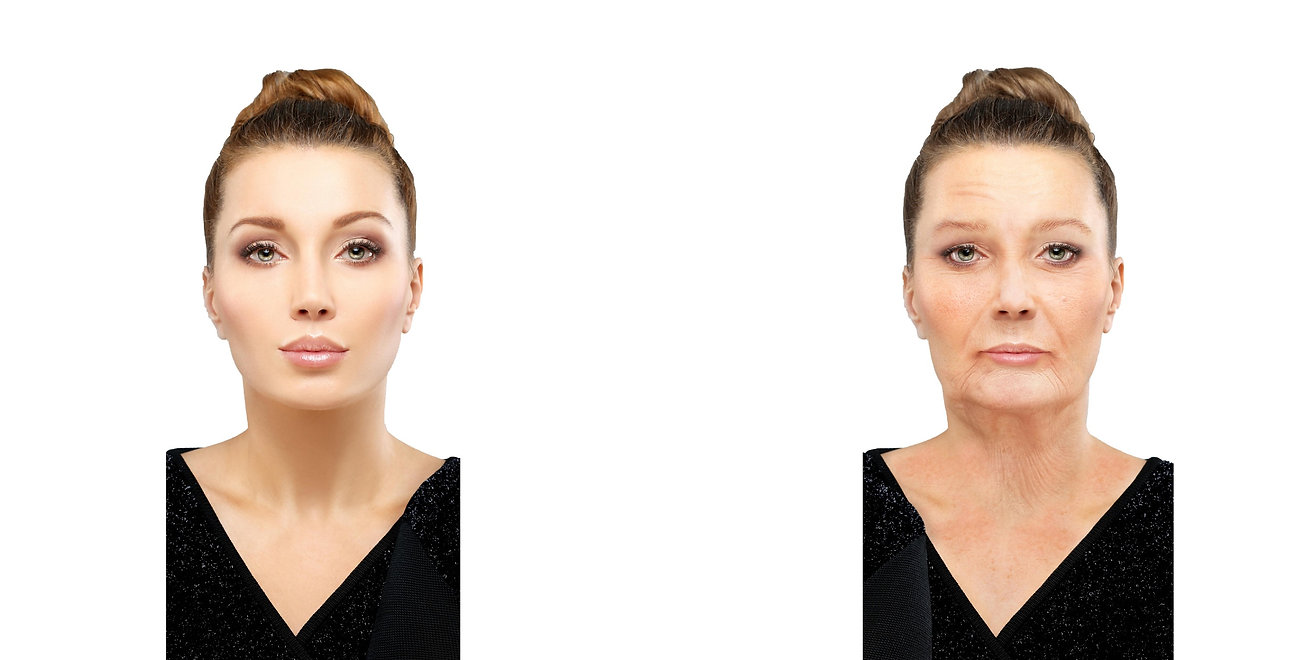 Lady with skin wrinkles needing facelift, fillers, botox, laser and chemical therapies