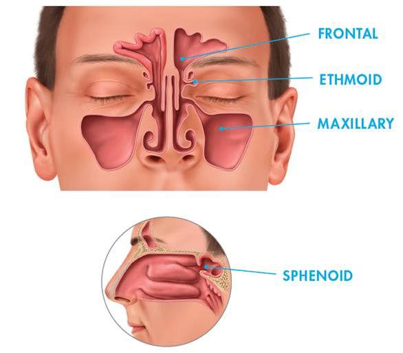 Office balloon sinus dilation procedure