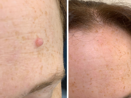 """""""Scarless"""" mole removal"""