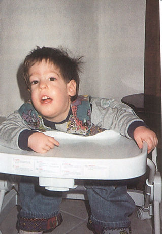 Child with Prader-Willi Syndrome