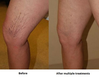 Sclerotherapy before & after.PNG