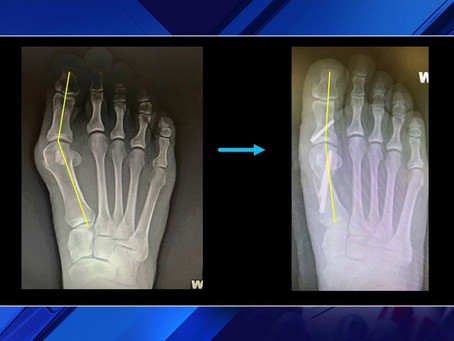 What Can I Do About My Bunion?