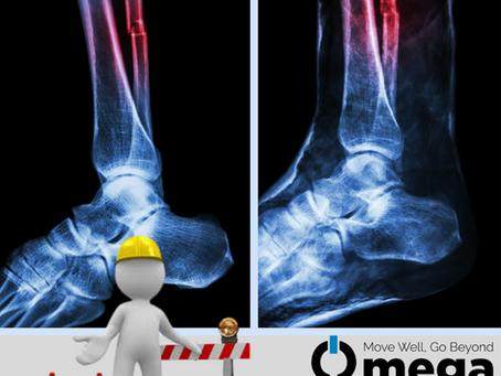 Injury Rehab Progression - Bone Healing