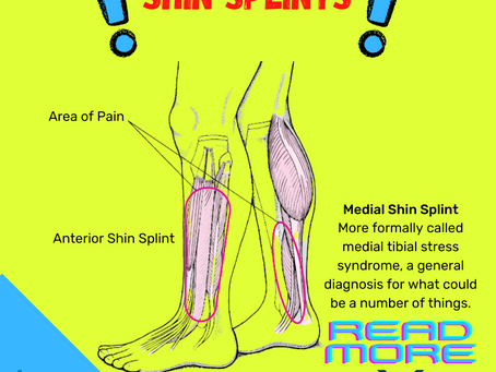 Running with Shin Splints - What Are They?