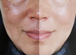 Manchas no rosto te incomodam? Conheça a solução para o controle do melasma.